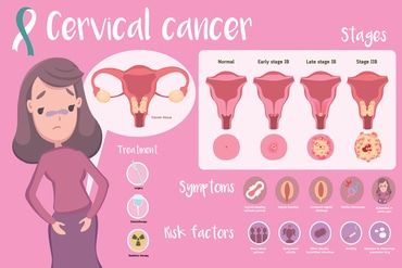 CERVICAL_CANCER_EVERYTHING_YOU_NEED_TO_BE_AWARE_ABOUT_blog